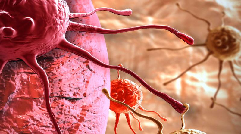 Tumore e cancro
