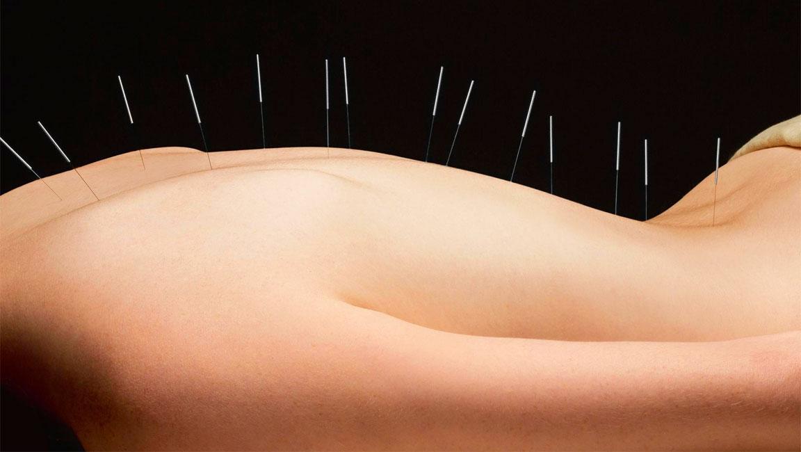 Aghi - Agopuntura - Medicina cinese