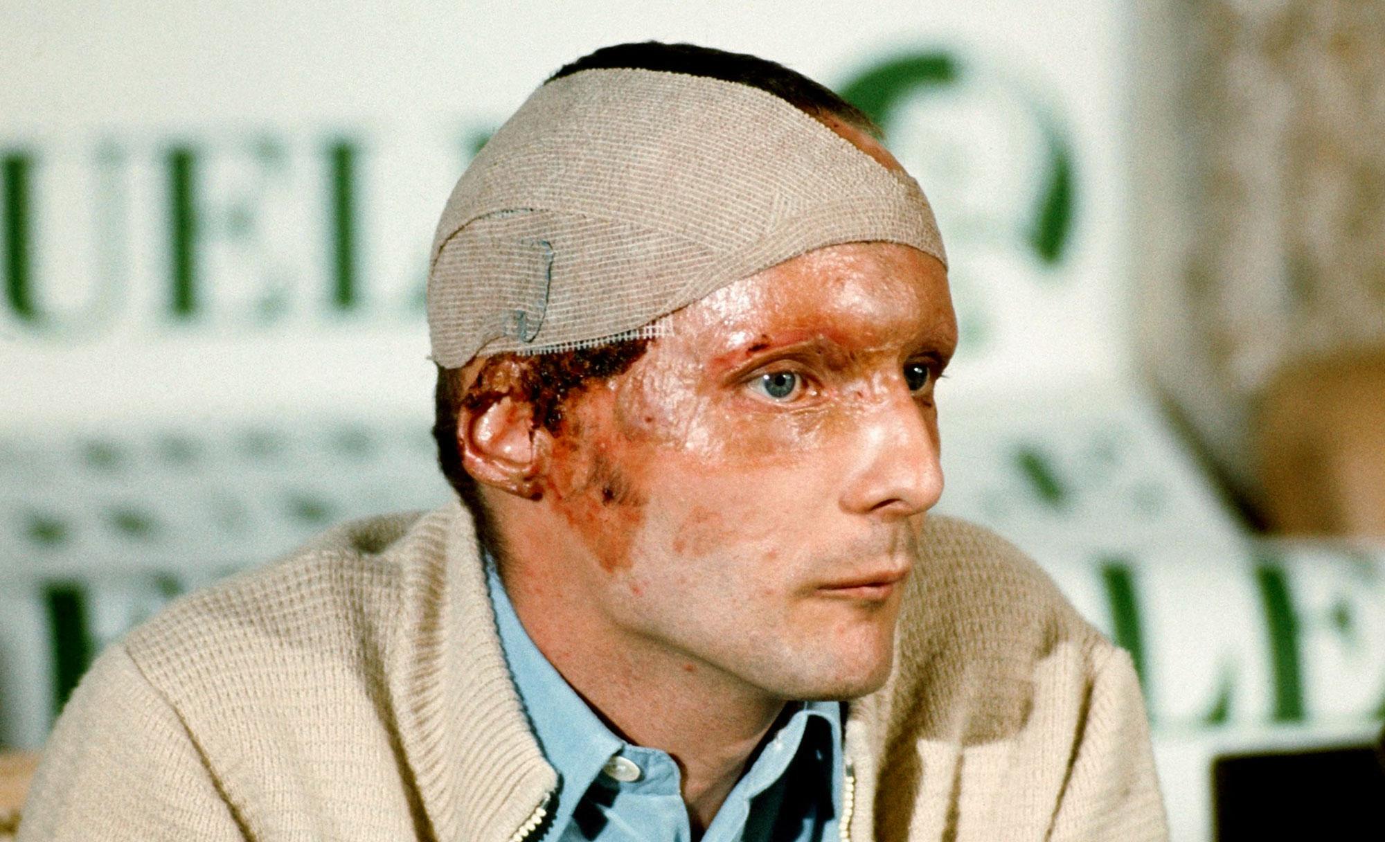 I segni delle bruciature sul viso diNiki Lauda